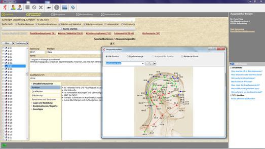 MingMen VI Software - Akupunkturpunkte