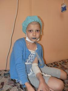 Tanja hat durch die rettende Chemotherapie ihre langen Haare verloren