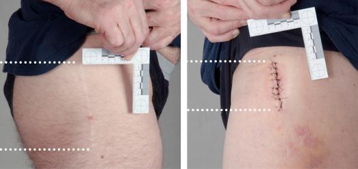 L.G., 56 Jahre, amerikanischer Staatsbürger, Operation rechte Hüfte vor 2 Jahren in Virginia (USA), Schnitt durch die Muskulatur 14 cm (links). OP linke Hüfte vor 7 Tagen, minimalinvasiv (MicroHip), Schnittlänge 7 cm (rechts). Der Patient rechts  ist seit dem 2. Tag nach der OP schmerzfrei auf den Beinen. Foto: Asklepios Klinikum Bad Abbach