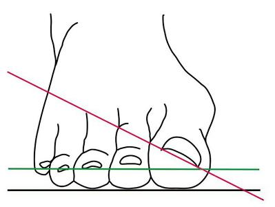 """Warnzeichen für einen """"Hallux valgus"""": Der Nagel des großen Zehs dreht sich (rote Linie) aus der Idealposition (grüne Linie).  Mit Fortschreiten der Erkrankung werden die anderen Zehen verdrängt"""