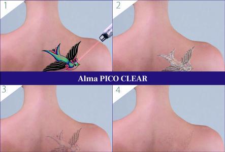 Tattooentfernung mit dem PICO CLEAR