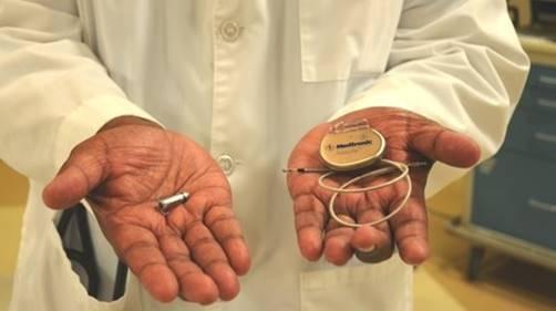 Kleinster Herzschrittmacher der Welt (li.) im Vergleich zu herkömmlichem Gerät (re.) / © Foto: Florida Hospital News