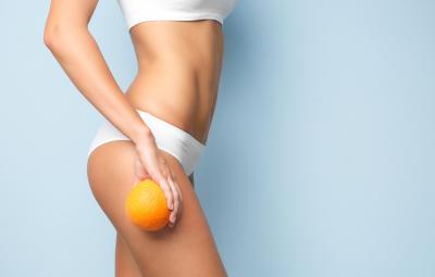 Zahlreiche Frauen leiden an Orangenhaut