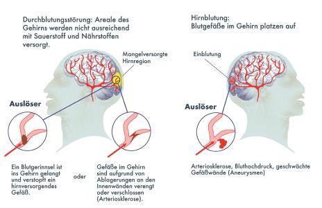 Schlaganfall-Illustration / Bild: DHS/Jan Neuffer