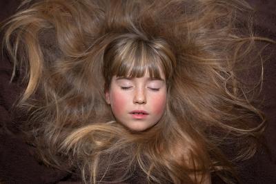 In jungen Jahren ist das Haar meist voll und gesund. Doch woran liegt es, wenn sich das einmal ändert?