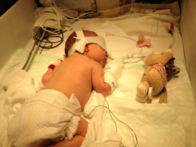 Die kleine Samira auf der Säuglingsintensivstation / Foto: Privat