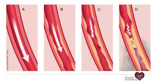 Arteriosklerose am Beispiel der Herzinfarkt-Entstehung. (c) medicalARTWORK Mainz/DHS / Quelle: Deutsche Herzstiftung